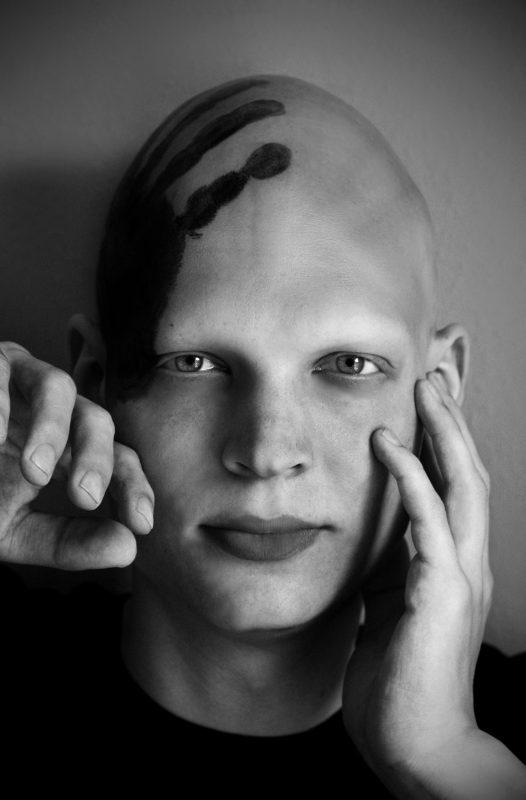 Sebastian fielen über Nacht die Haare aus. Foto: Lisa Kirchner